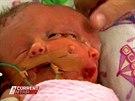 V Austrálii se narodila vzácná dvojčata s jedním tělem a dvěma obličeji.