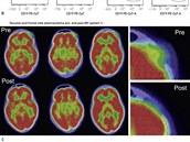 Zmenšení nádoru na čele u 49leté pacientky