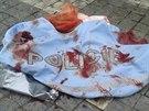 Tričko, kterým policista zraněnému turistovi zastavil krvácení z hlavy...