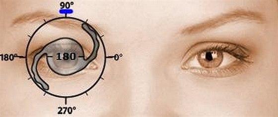 Oční klinika OFTAL vám zajistí ostrý zrak i bez brýlí a čoček.