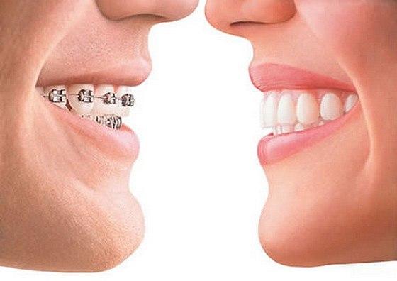 Rovnátka Invisalign vám vykouzlí neodolatelný úsměv