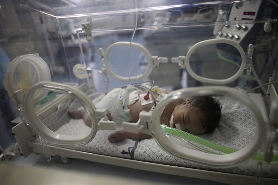 Při konfliktu v Gaze trpí zejména civilisté. Tiskové agentury jsou proto plné