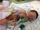 Chloe Bennettov� se zotavuje po n�ro�n� operaci srdce.