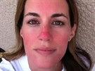 Bývalá Miss Lucie Křížková Váchová si na vlastní kůži vyzkoušela, jaké jsou reakce lidí na onemocnění rosacea. Týden byla nalíčená, jako kdyby touto nemocí trpěla.