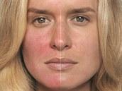 Stále �ervený obli�ej je p�íznakem nemoci zvané rosacea.