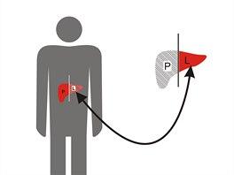 Schéma auxiliární transplantace jater