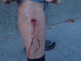 Agresivní pes procházejícího se muže pokousal na noze.