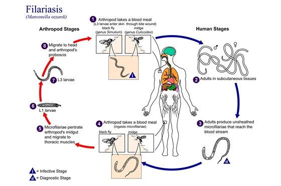 Jak prob�h� n�kaza  limfatickou filari�zou?