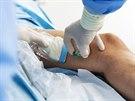 Pod stálou ultrazvukovou kontrolou je do poškozené žíly zavedena tenká kanyla a...