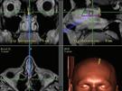 Fotografie pořízené během biopsie, při které lékaři získali z mozku pacienta...