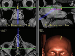Fotografie po��zen� b�hem biopsie, p�i kter� l�ka�i z�skali z mozku pacienta...
