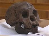 Srovnání lebky Homo floresiensis (vlevo) s lebkou člověka postiženého mikrocefalií, tedy chorobným zmenšením lebky.
