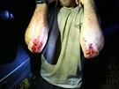 Modřiny, krev, pot, slzy. Účastníci Operace Izrael si sáhli na dno.