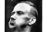 Karl Marzahn, v době fotografování 37letý, byl zasažen na konci války, 26. října 1918. Přišel o dolní čelist, zuby a jazyk. Na plastickou operaci byla použita tkáň z hlavy a hrudi.