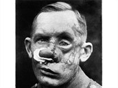 Tento voják, který nesdělil jméno, přišel o nos levou tvář, které lékaři zrekonstruovali s pomocí tkáně z hlavy, hrudníku a paže.