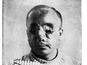 Tomuto muži střepiny z granátu vyrazily v roce 1915 obě oči.