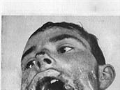 Pozor, tato fotografie je opravdu na pohled děsivá. Dva muži, kteří přežili zásah šrapnelem do spodní čelisti. Jejich totožnost je neznámá: muž vlevo uváděn jako záložák S., vpravo střelec R.. Oba ještě čekaly další operace.