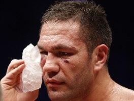 Bulharský boxer Pulev má po KO od Vladimíra Klička zlomenou lícní kost a otřes mozku.