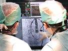 Lékaři pozorně sledují postup operace.