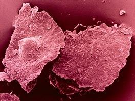 Mikroskopick� pohled na lupy