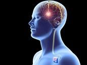 Ke zmír�ování následk� Parkinsonovy nemoci se pou�ívá lé�ba nazvaná DBS (Deep...